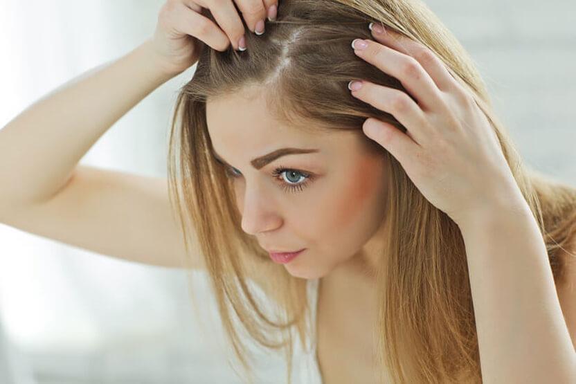 hair loss treatments australia